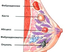 Фото - Патологічні зміни в молочній залозі