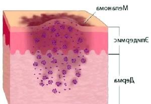 Фото - Схема розвитку меланоми в шкірі
