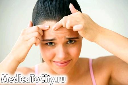 Фото - Чому прищі на лобі виникають так часто?