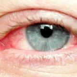 Фото - Фото - Гостра та хронічна вірусна інфекція очей