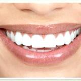 Фото - Фото - Відбілювання зубів своїми силами