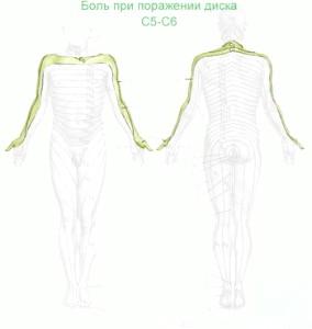 Фото - Парамедіанна грижа диска c5-c6