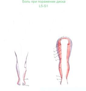 Фото - Парамедіанна або парамедіальний грижа диска l5-S1