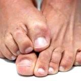 Фото - Фото - Паразитує грибок на шкірі людини