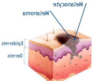Фото - Схема прояви меланоми на ділянці дерми