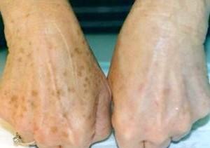 Фото - Пігментні плями на руках - до і після відбілювання