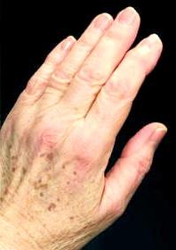 Фото - Фото пігментних плям на руці
