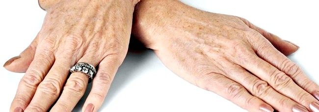 Фото - Руки з пігментними плямами