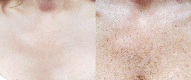 Фото - Приклад області декольте до і після процедури виведення пігментних плям