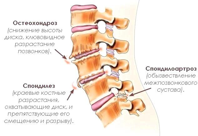 Фото - Деякі поширені хвороби хребта