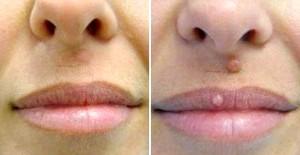 Фото - До і після Удалн родимки на обличчі