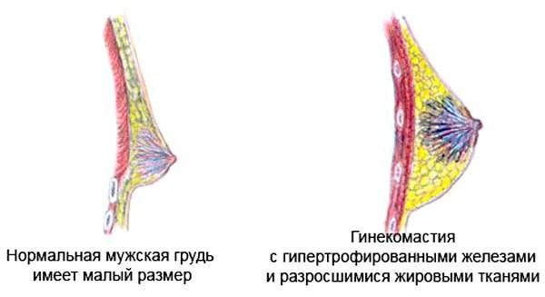 Фото - Порівняння нормальної чоловічих грудей з гіпертрофованою