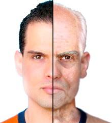 Фото - Гінекомастія справжня виникає незалежно від віку