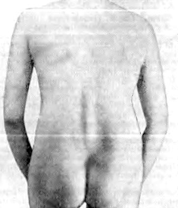 Фото - на фотографії виражений кіфоз поперекового відділу хребта