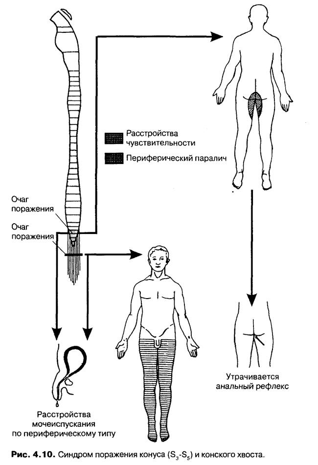 Фото - синдром конуса