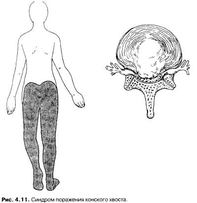 Фото - синдром ураження кінського хвоста