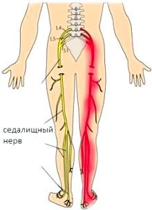 Фото - біль в області стегон і гомілки