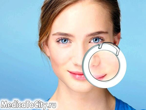 Фото - Внутрішні прищі на обличчі - як їх позбутися