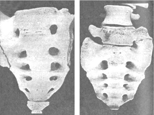 Фото - Зовнішній вигляд люмбалізація хребця s1