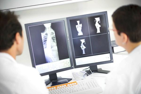 Фото - Діагностика грудного кіфозу