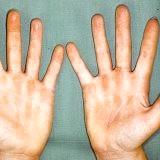 Фото - Фото - Причини і симптоми контактної алергії