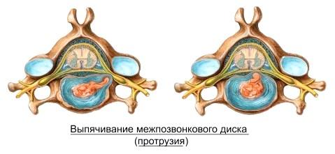Фото - протрузія міжхребцевого диска