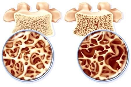 Фото - регіонарний остеопороз
