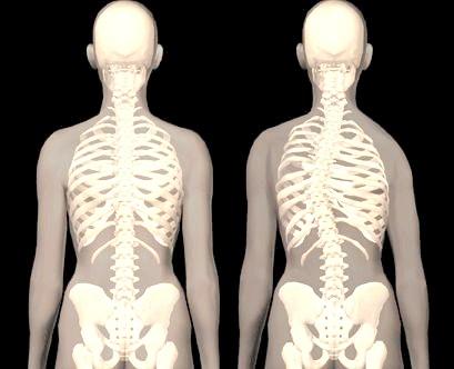 Фото - диспластический сколіоз характеризується утворенням реберного горба