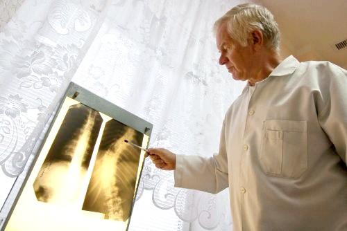 Фото - діагностика диспластичного сколіозу проводиться за допомогою рентгена і МРТ