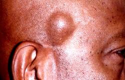Фото - Фото жировика, який утворився на обличчі людини