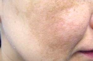 Фото - Невеликі пігментні плями на шкірі обличчя людини