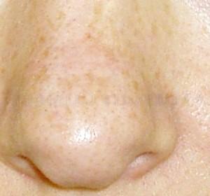 Фото - Фото пігментних плям на шкірі носа людини