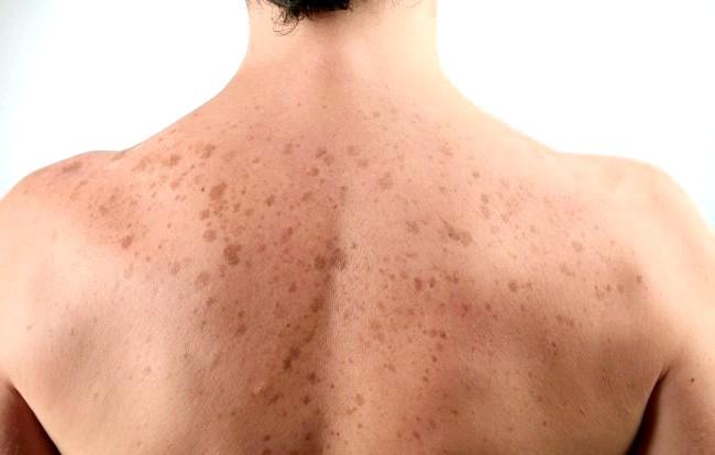 Фото - Поява пігментних плям на спині людини