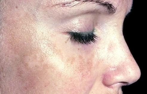 Фото - Пігментні плями на лівій щоці жінки
