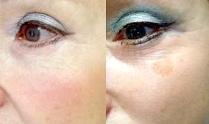 Фото - До і після лікування пігментних плям на обличчі