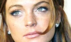 Фото - Знаменитість з пігментними плямами на обличчі