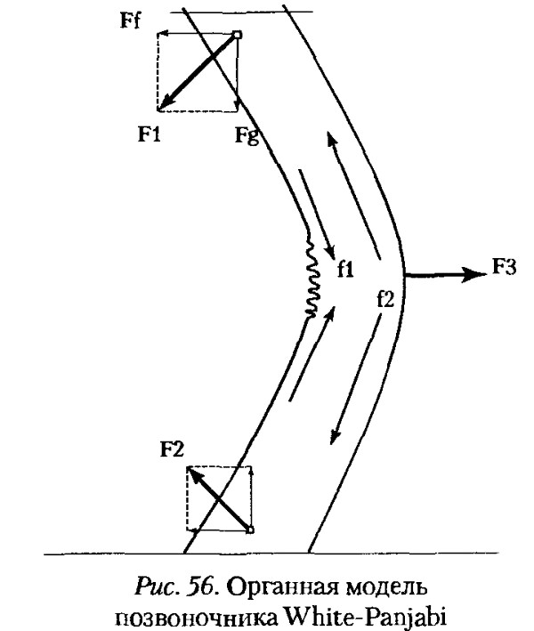 Фото - органна модель хребта пояснює причини виникнення сколіозу 2 ступеня