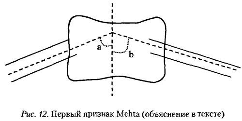 Фото - симптом прогрессіованія сколіозу 2 ступеня