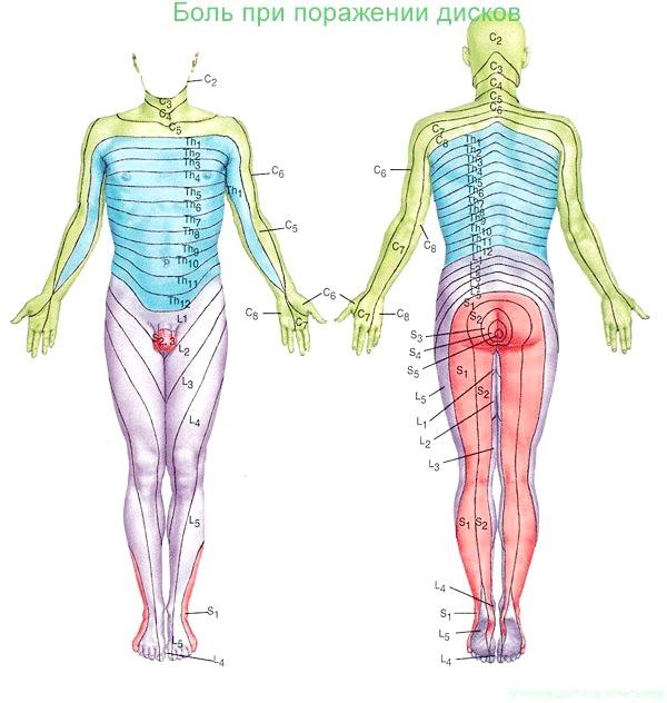 Фото - Біль у різних частинах тіла при затисканні нервових корінців дорзального (дорсальном) та іншими видами гриж