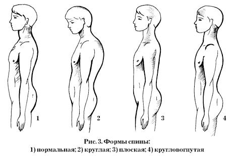 Фото - плоска спина у дитини призводить до ослаблення м'язового каркаса навколо хребта