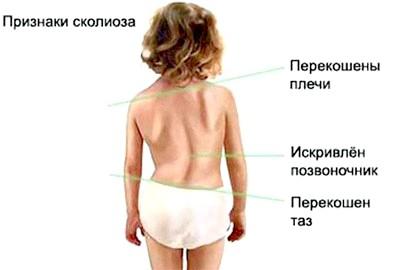 Фото - Характерні ознаки сколіозу