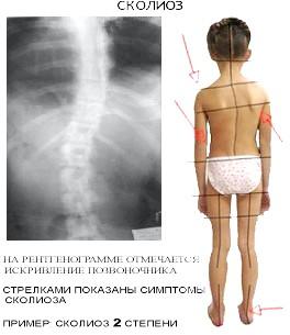 Фото - Клінічні симптоми сколіозу хребта на рентгенограмі
