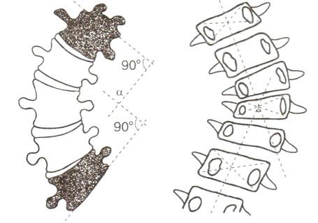 Фото - фіксований сколіоз характеризується скручуванням хребців і їх деформацією
