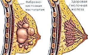 Фото - Фізіологічні зміни в тканини грудей