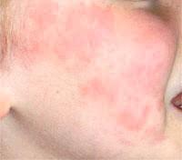 Фото - Фото алергії на апельсини.