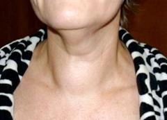 Фото - вузловий зоб на шиї