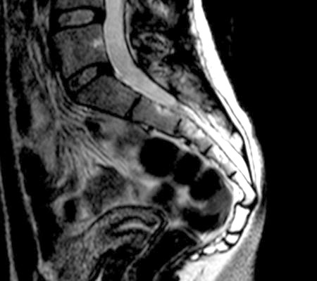 Фото - рентгенографія куприка і крижів