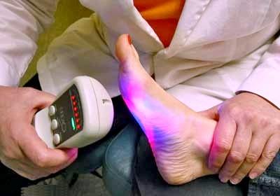 Фото - Фото процедури лазерного видалення бородавки