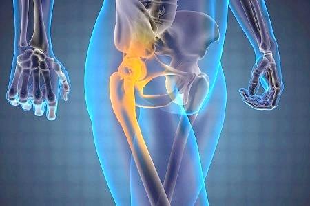 Фото - остеохондроз тазостегнового суглоба 2 ступеня