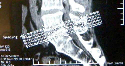 Фото - комп'ютерна томографія